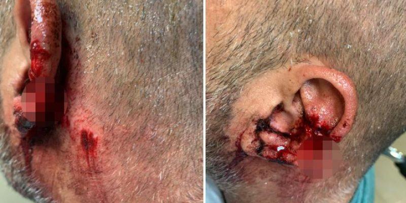 079 - לוכד כלבים של מ.א.חוף הכרמל הותקף קשות - דוברות המועצה